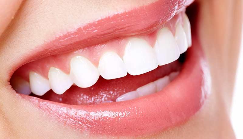 Dentista impianti dentali