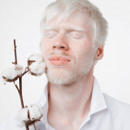 albinismo
